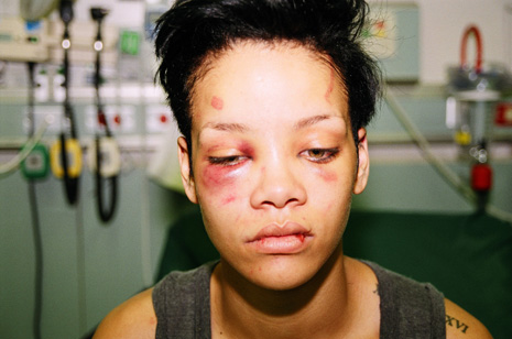 Why-Do-We-Still-Listen-To-Chris-Brown-Recycled-Novelty-Rihanna-Bruises-Fight